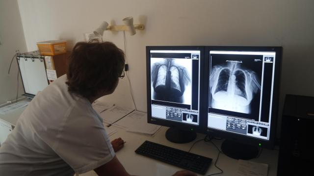 27 milliós új röntgengépet kapott a tüdőgondozó