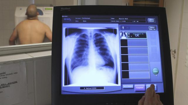 Új helyre költözik a tüdőgondozó