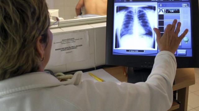 Javulnak a magyar népegészségügyi mutatók