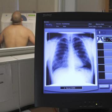 Kidolgozták a tüdőszűrés új rendszerét